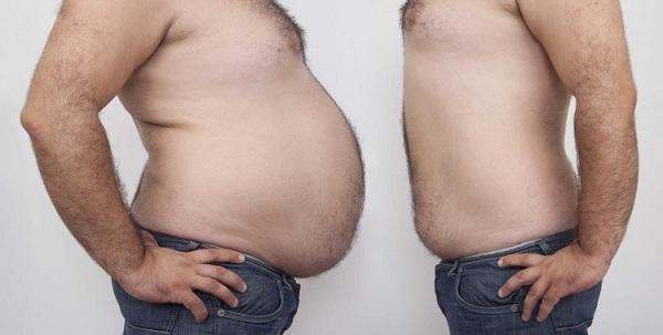 بعد عمليّة شفط الدهون: هل يمكن استرجاع الوزن الزائد؟