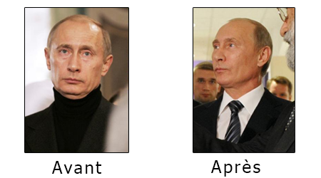 Vladimir-Poutine-chirurgie-esthetique