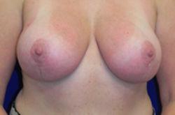 lifting-mammaire-apres