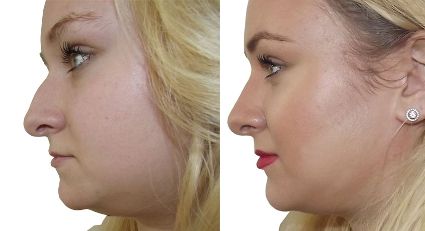 rhinoplastie tunisie chez tanit esthetique chirurgie esth tique du nez. Black Bedroom Furniture Sets. Home Design Ideas