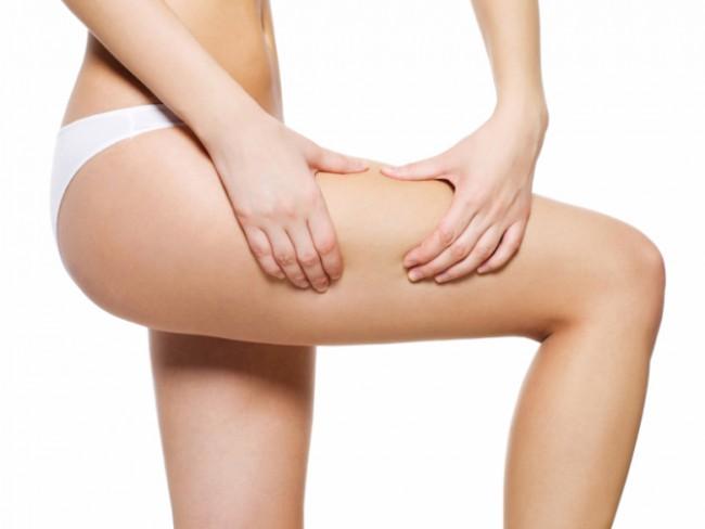 liposuccion contre cellulite